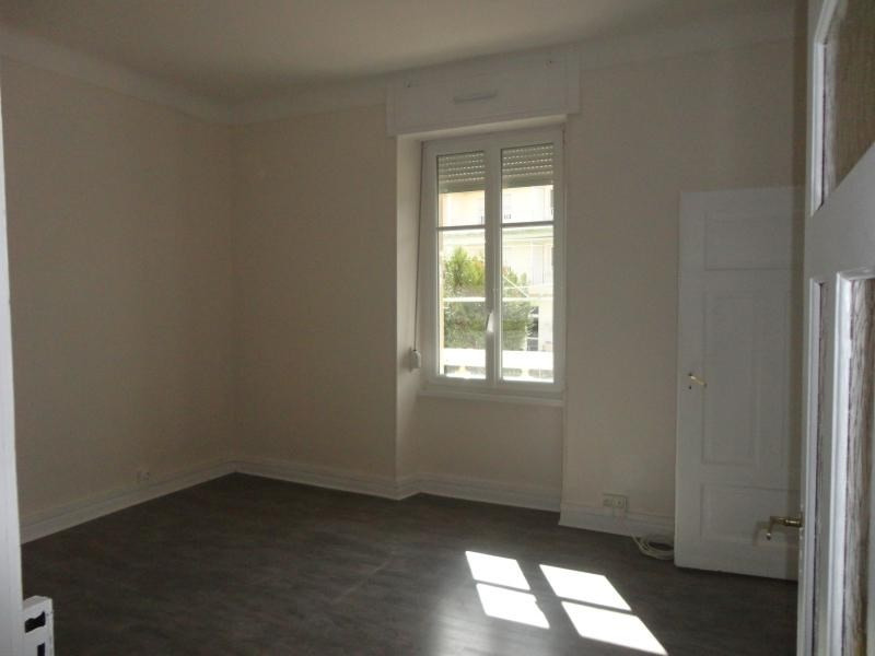 Sale apartment Metz 191 500€ - Picture 2