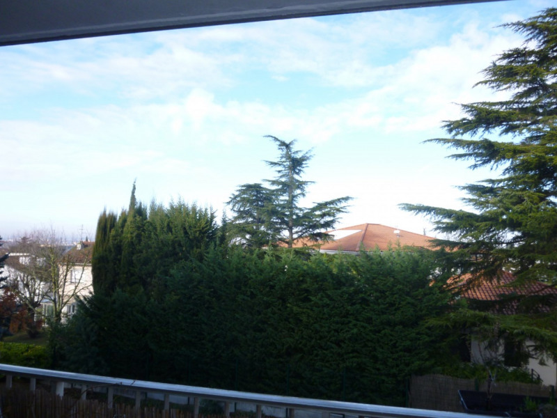 Vente appartement Toulouse 117 700€ - Photo 2