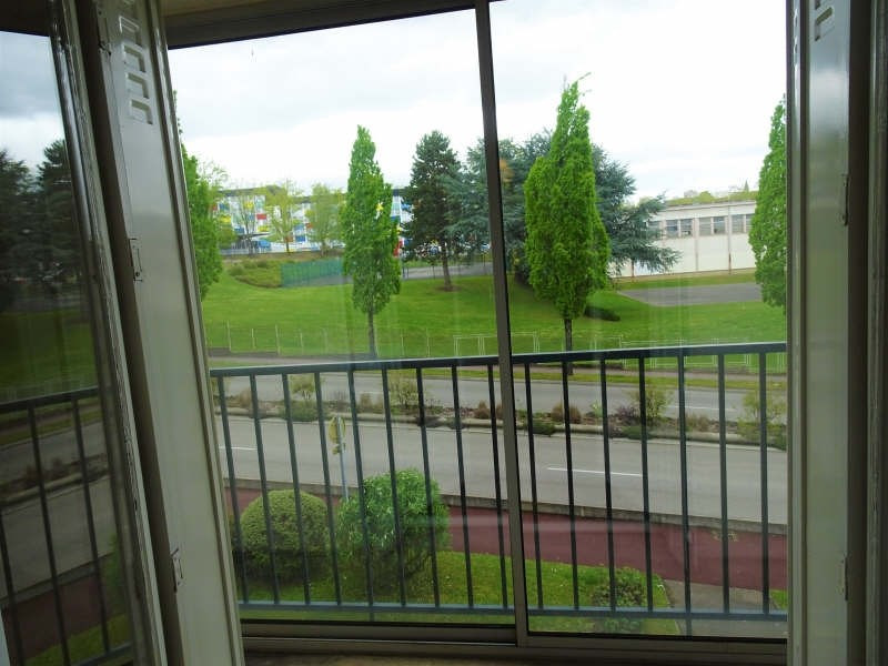 Vente appartement Limoges 54000€ - Photo 3